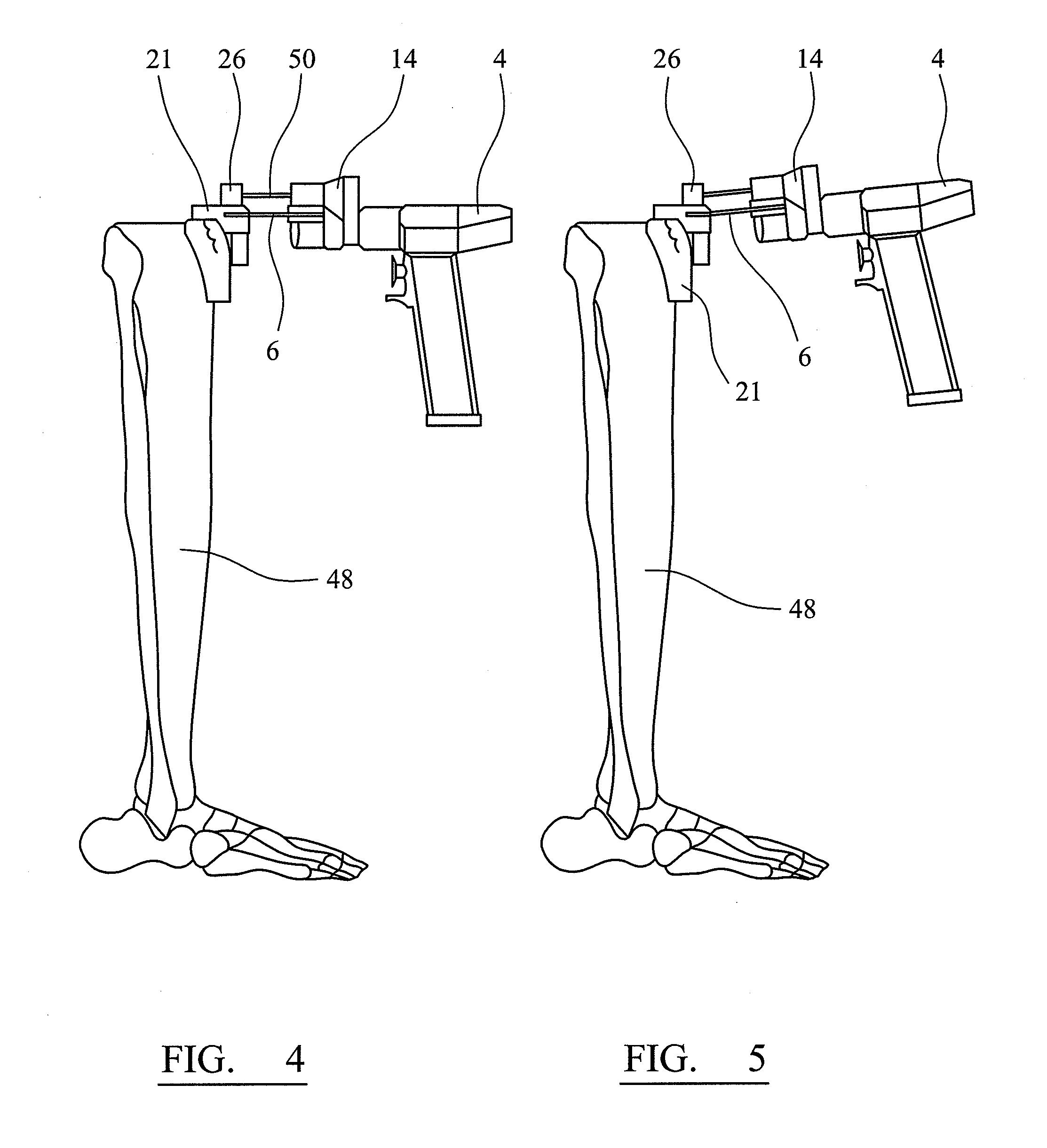 de puy surgical devices